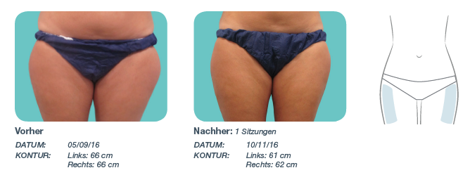 The Swiss Methode Erfahrungsberichte