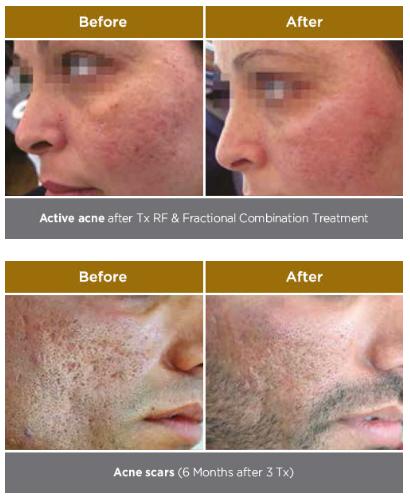 Tx RF & Frasctional Combination Treatment