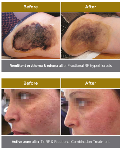 Remittent erythema & after Fractional RF hyperhidrosis