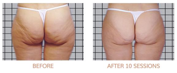 Cellulite reduzieren
