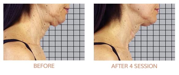 Gesichtskonturen verbessern