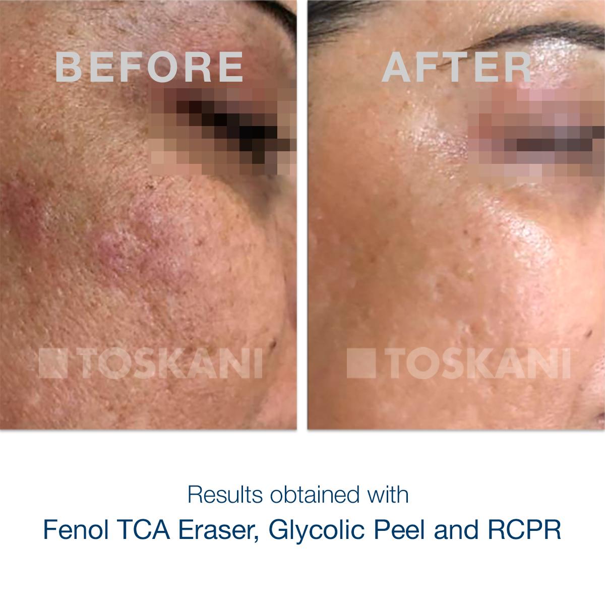 Fenol TCA Eraser-Results