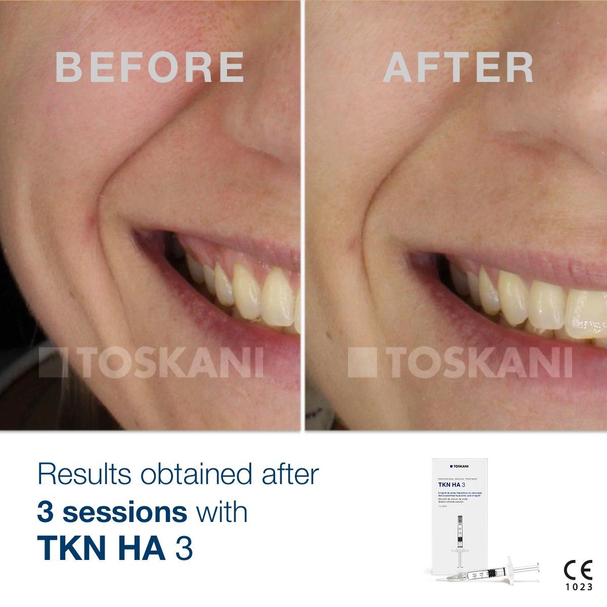 TKN HA3- Results