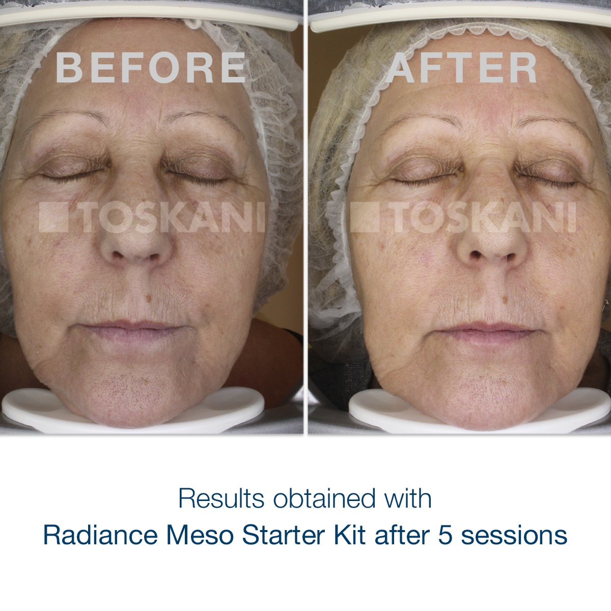 Radiance Meso-Results