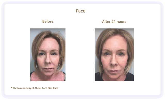 Face-Vorher/Nachher