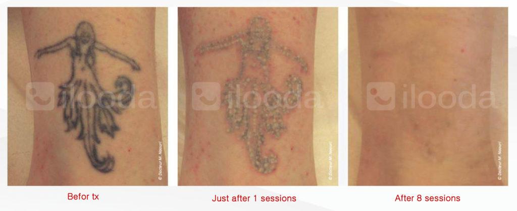 Behandlung von Tattoos