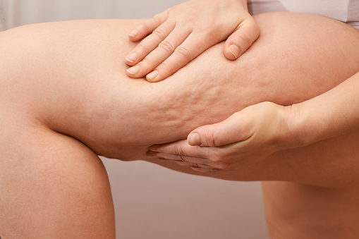 Anti-Cellulite Gerät grundsätzlich